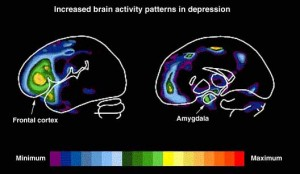 Depression And Brain